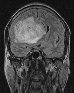 Proceso neoformativo frontal, con efecto masa y desplazamiento de la línea media. Corte coronal.