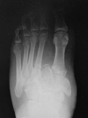 Radiografía anterposterior, lateral y oblicua de pie donde se objetiva fractura-luxación tipo Lisfranc con afectación a varios niveles de la articulación tarso y metatarsal.