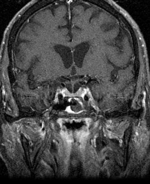 RMN craneal con otra proyección: se observa también el engrosamiento del seno cavernoso izquierdo.