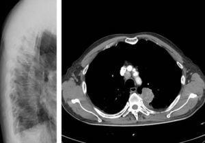 Rx de columna dorsal. TAC toraco-abdominal con masa de 4cm de diámetro en segmento posterior de LSI que contacta con pleura visceral y cisura oblicua. Metástasis ósea en D5 y tumoración de partes blandas que protruye hacia la cavidad torácica.