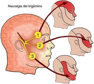 Distribución de las ramas del nervio trigémino.