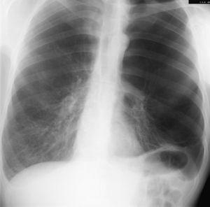 Enfisema bulloso severo de predominio en lóbulos superiores.