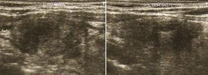Ecografía tiroidea del paciente que muestra una proyección sagital de ambos lóbulos tiroideos donde se aprecia la estructura heterogénea y el nódulo mixto de predominio quístico en lóbulo derecho. Fuente: imagen cedida por el paciente.