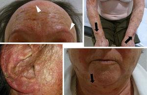 Diversas lesiones dermatológicas en paciente con lupus eritematoso cutáneo subagudo inducido por hidroclorotiazida. Se observa atrofia cutánea con equimosis en regiones foto-expuestas (flechas color negro), alopecia cicatricial en región frontotemporal, y madarosis bilateral (puntas de flecha blancas) y lesiones fibrocicatriciales en pabellón auricular.