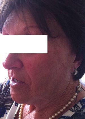 Evolución favorable de las manifestaciones cutáneas, 3 meses después de la retirada de la hidroclorotiazida. Se observa, no obstante, persistencia de la alopecia cicatricial en región frontotemporal y madarosis bilateral (Nota: la paciente porta prótesis capilar).