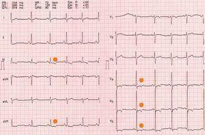 Electrocardiograma del deportista. Trazado ECG que muestra ondas T negativas, señaladas con un punto, en la cara inferior (iii, aVF) y en las derivaciones precordiales izquierdas (V4-V6).