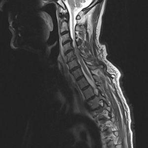 RM cervical. Corte sagital. Secuencia T1. Pinzamiento del espacio discal C5-C6 con hiperintensidad de la señal e irregularidad del cuerpo vertebral de C5 y C6 compatibles con espondilodiscitis. Protrusión discal posterior y ocupación del espacio epidural. Estenosis de canal C4-C5 y en C5-C6: se observa alteración de la señal indicativa de mielopatía cervical.
