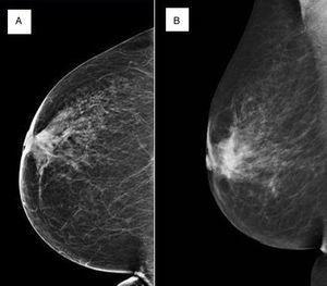 Imagen de la mamografía de cribado (A) y de la mamografía diagnóstica (B) realizadas a la paciente.