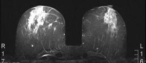 Resonancia magnética nuclear realizada como parte del protocolo de estudio de extensión de la enfermedad tumoral.