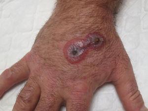 Lesión en estadio dianiforme en la primera visita del paciente, consistente en 2 placas violáceas unidas con halo eritematoso y centro ampolloso.