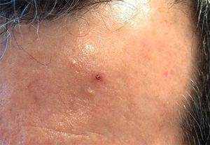 Lesión vesículo-costrosa en zona frontal izquierda.