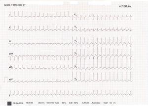 Taquicardia paroxística supraventricular a 180 latidos por minuto.