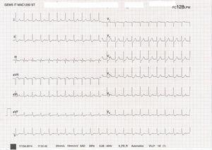 Taquicardia paroxística supraventricular a 128 latidos por minuto.