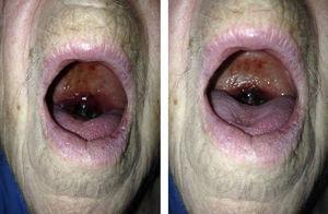 Edematización de la úvula con hematoma generalizado con zonas aisladas de necrosis.