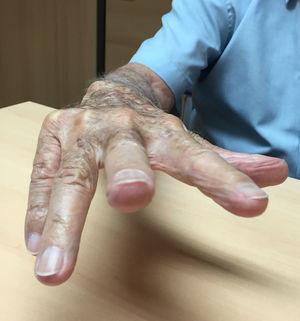 Limitación espontánea de la extensión activa de meñique y anular de la mano derecha.