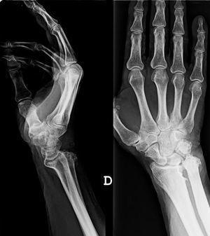 Artropatía degenerativa evolucionada con marcada desestructuración articular radio-cubital distal, con alargamiento y elevación del cúbito respecto al radio (cúbito plus) y desviación dorsal de la cabeza cubital.