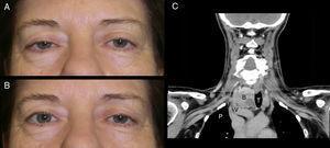 A) Ptosis palpebral derecha y miosis en paciente con síndrome de Horner. B) Tras la instilación de apraclonidina 0,5% se observa una elevación del párpado superior y una resolución de la ptosis (en función del paciente en ocasiones se produce ptosis y/o anisocoria reserva). C) TC del mismo paciente en la que se observa el aumento de tama??no de la glándula tiroidea, con prolongación endotorácica entre los grandes vasos y la tráquea. P: vértice pulmonar&#59; V: vasos cervicales&#59; B: bocio&#59; T: tráquea..