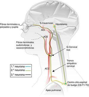 Representación esquemática de la vía oculosimpática, con sus 3 neuronas y las principales relaciones con el ápex pulmonar y los grandes vasos de cabeza y cuello. ACE: arteria carótida externa&#59; ACI: arteria carótida interna&#59; ACC: arteria carótida común.
