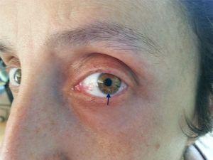 Nódulo de Lisch: hamartomas melanocitarios de naturaleza idéntica a las manchas café con leche, ubicados en el iris. No comprometen el campo visual. Son visibles como nódulos marrones si se observan con lámpara de hendidura.