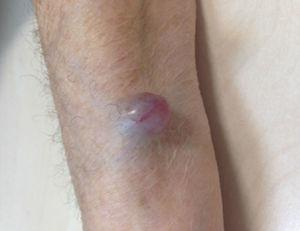 Nódulo violáceo en antebrazo izquierdo.