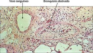 Bronquiolitis obliterante. Biopsia transbronquial de un paciente trasplantado que muestra un bronquiolo con su luz completamente obstruida.