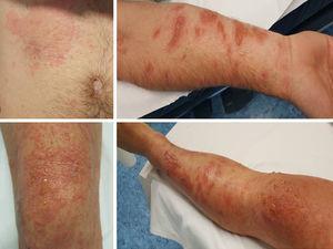 Lesiones vesiculoampollosas sobre base eritematosa en tronco y extremidades.