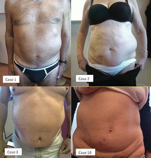 Parálisis abdominal: caso 1 (agosto 2008); caso 2 (diciembre 2010); caso 3 (agosto 2012) y caso 10 (marzo 2016).