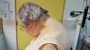Fotografía de la paciente de perfil en la que se evidencia cifosis cervical de «mentón-tórax».