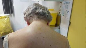 Fotografía de la paciente postero-anterior en la que se evidencia cifosis cervical.