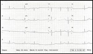 ECG del caso: QT largo (720ms) y QTc 640ms.
