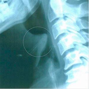 Radiografía cervical lateral con «signo del pulgar».