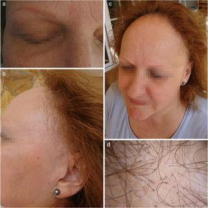 a) Alopecia completa de las cejas disimulado por tatuaje; b) Retroceso de la línea de implantación del pelo; c) Visión completa del retroceso de la línea fronto-temporal y alopecia de las cejas, y d) Imagen de cuero cabelludo ampliada donde se observa eritema e hiperqueratosis folicular (AFF en fase activa).