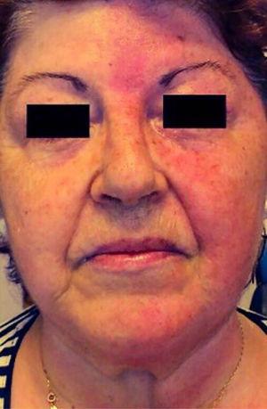 Síndrome de Arlequín. Rubefacción facial hemicara izquierda y palidez en hemicara derecha completamente delimitada por línea media.