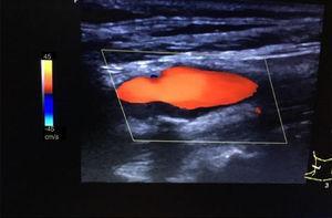 Imagen ecográfica de placa hipoecogénica, heterogénea y calcificada (sombra posterior) en carótida interna derecha que ecográficamente parece un trombo.