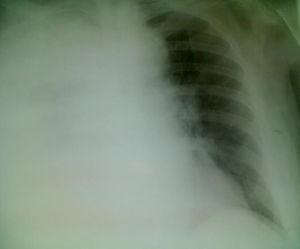 Proyección posteroanterior de radiografía de tórax con portátil, donde se aprecia afectación pulmonar con derrame pleural derecho total.