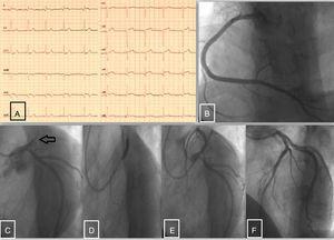 A) Electrocardiograma en urgencias. B) Arteria coronaria derecha sin lesiones angiográficas significativas. C) Oclusión trombótica proximal de la arteria descendente anterior; circunfleja sin lesiones angiográficas. D) Angioplastia con stent farmacoactivo de la arteria descendente anterior. E y F) Resultado final postangioplastia con stent farmacoactivo.