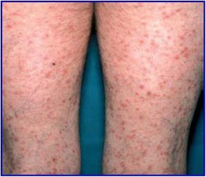 Lesiones máculo-papulares eritematosas y descamativas, algunas vesículo-pústulas y costras con necrosis central levemente pruriginosas, localizadas en piernas.