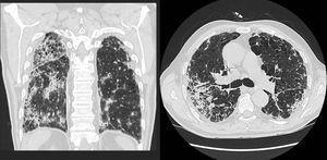 Áreas parcheadas de aspecto alveolar y broncograma aéreo.