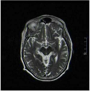 Imagen de resonancia magnética (RMN) cerebral que muestra una discreta hiposeñal difusa en T2 capsulolenticular bilateral de significado inespecífico.