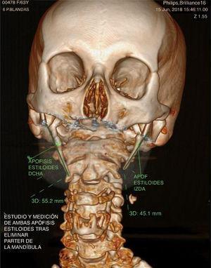 CBCT-3D. Apófisis estiloides elongadas.