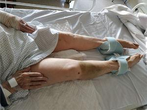 Hiperextensión de manos y pies en relación con la hipocalcemia.
