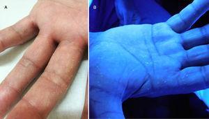 A) Detalle de las lesiones hiperqueratósicas filiformes. B) Fluorescencia blanca de las lesiones con luz de Wood.