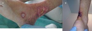 A) Úlcera de bordes eritematosos en zona maleolar externa. B) Úlcera con placa necrótica en región aquílea, zona típica de aparición de las úlceras de Martorell.