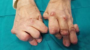 Deformidad de manos en etapa tardía en artritis reumatoide, con desviación cubital de articulaciones metacarpofalángicas, deformidad en cuello de cisne de los dedos y deformidad en ojal del pulgar.