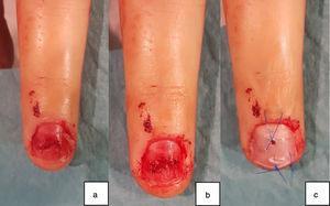 a) Lesión compleja lecho ungueal. b) Reparación mediante sutura reabsorbible. c) Reposición de la placa ungueal y fijación mediante sutura irreabsorbible.