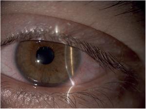 Varón de 33 años con infiltrado estéril periférico que reconoció abuso de lentes de contacto (más de 12h diarias). El cuadro mejoró tras el descanso de lentes de contacto por 2 semanas y tratamiento con colirio de dexametasona durante 5 días.