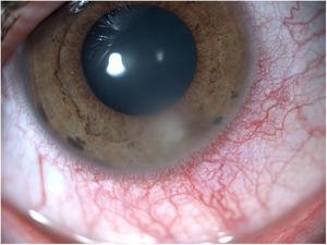 Varón de 30 años usuario de lentes que contacto con queratitis infecciosa en su ojo derecho. El cultivo microbiológico, sin embargo, fue negativo. Imagen cortesía de la Dra. Anna Camòs.