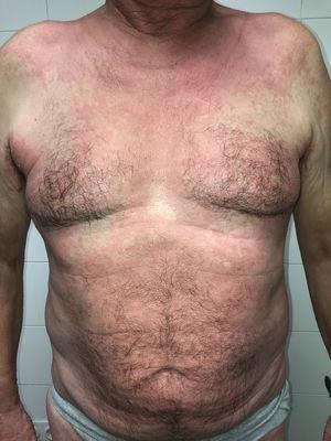 Erupción maculopapular que afecta predominantemente al tronco, donde es confluyente. Nótese la afectación flexural en cuello y axilas.