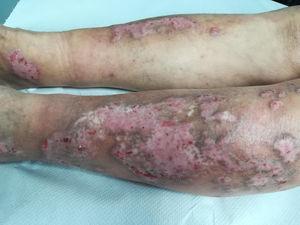 Lesiones de prurigo nodular en región anterior de ambas piernas.