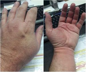 Lesiones habonosas en dorso y palma de la mano.